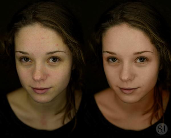 Before and After - Model: Julia T.