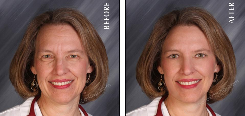 Photo retouching for age-defying face lift. No more wrinkles, drooping eyelids or receding hairline